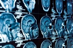 cranialscan